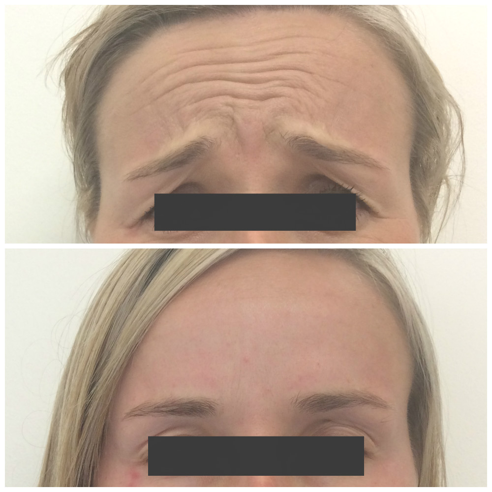 Botox injections on forehead Newcastle