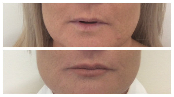 Lip filler treatments in Newcastle