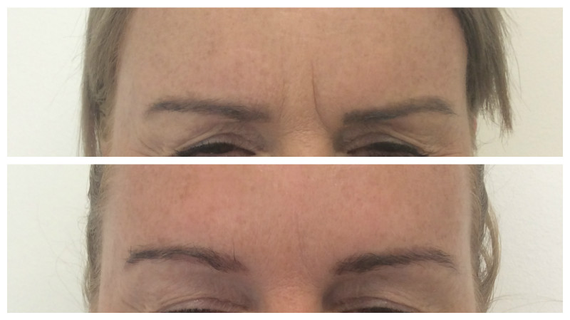Botox treatment results in Newcastle