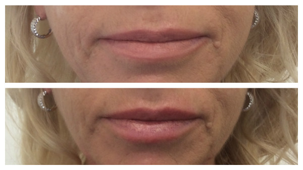 Lip fillers in Newcastle