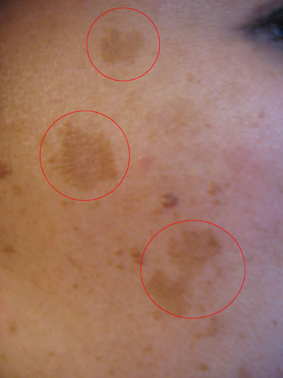 The Mayah Clinic - Wikipedia image of melasma blemish