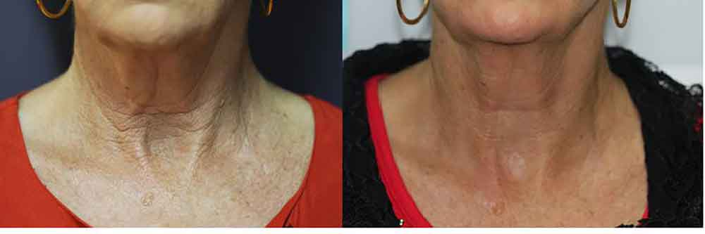 The Mayah Clinic - cold laser treatment on neck