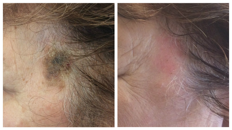 Pre and Post Microlaser Peel Laser
