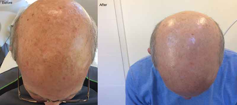 Broadband Light treatment on head before and after