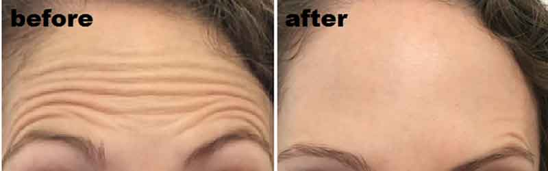 The Mayah Clinic - before and after botox