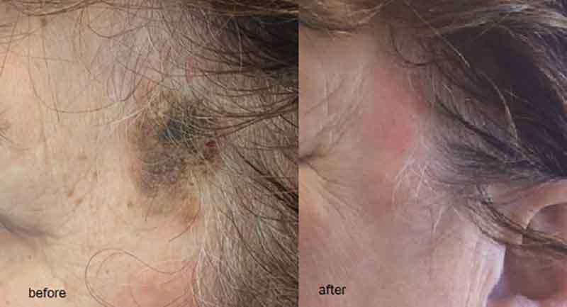 before and after Micro Laser Peel results