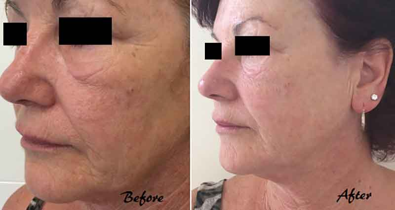 The Mayah Clinic - before and after Photonsmart LED Laser treatment