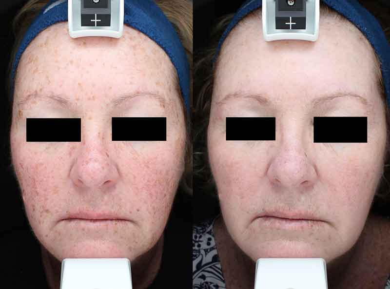 before and after HALO Laser Treatment