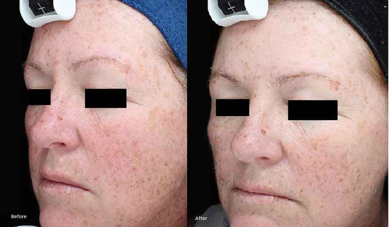The Mayah Clinic before and after HALO Laser Treatment