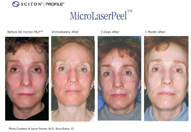 Before & after results Micro Laser Peel