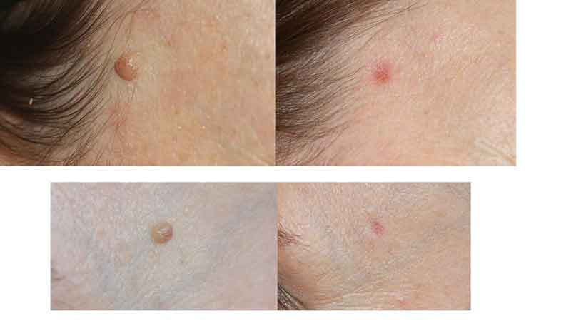 The Mayah Clinic - Resurfacing Laser Treatment - before and after mole removal