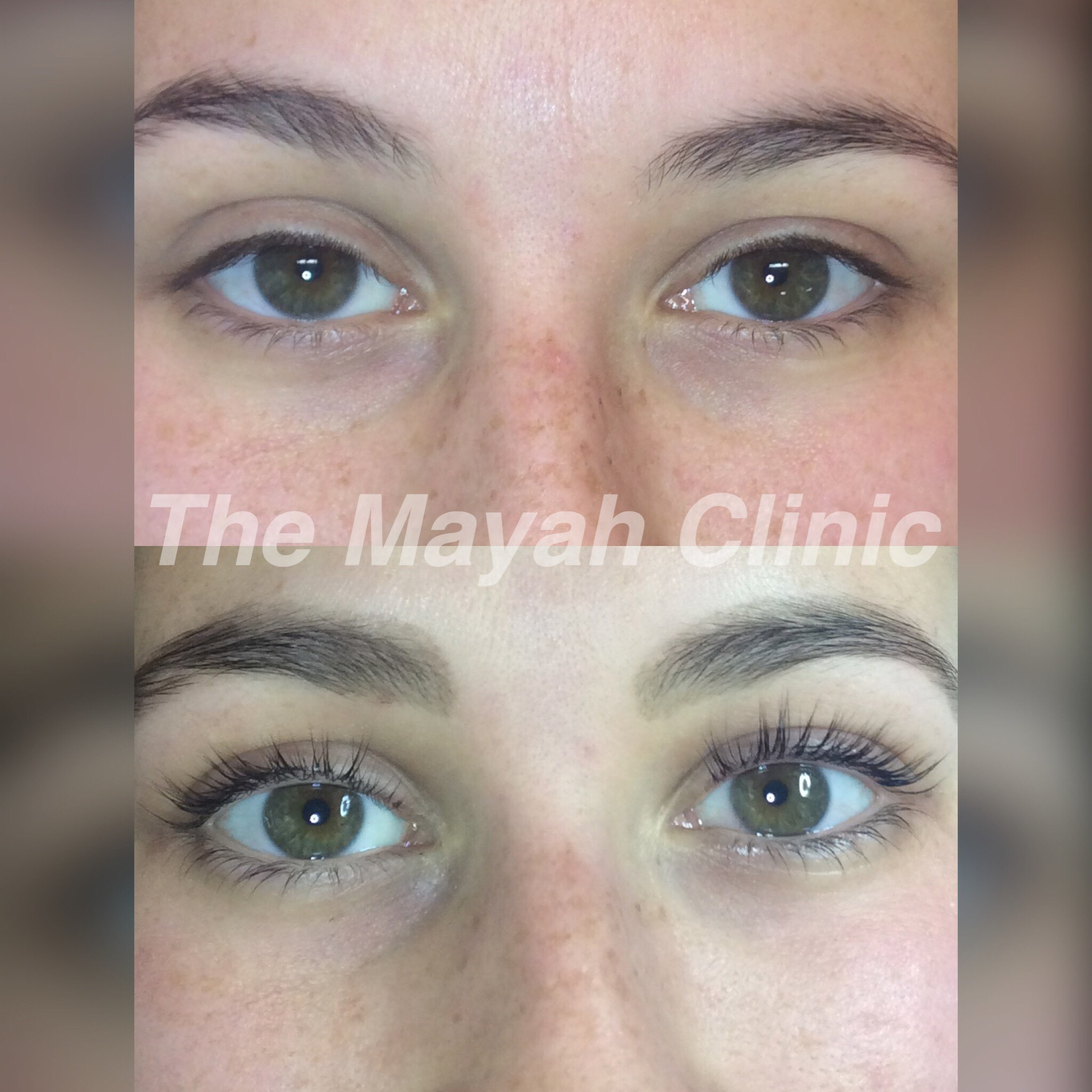 Lash lift at The Mayah Clinic
