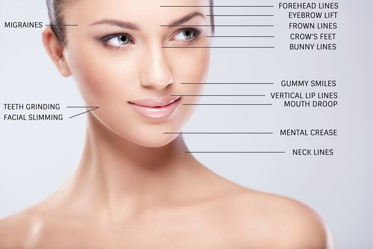 Botox Anti wrinkle injections Newcastle