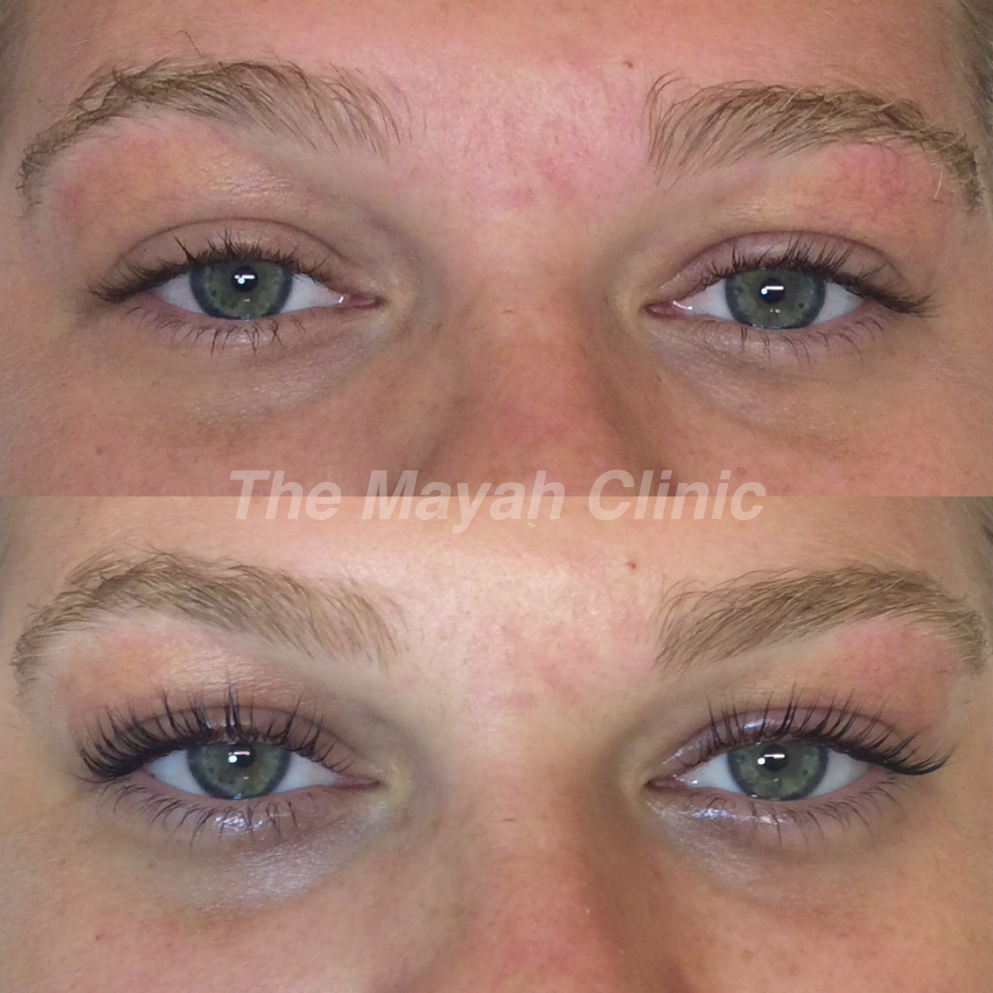 Before and after Eyelash lift