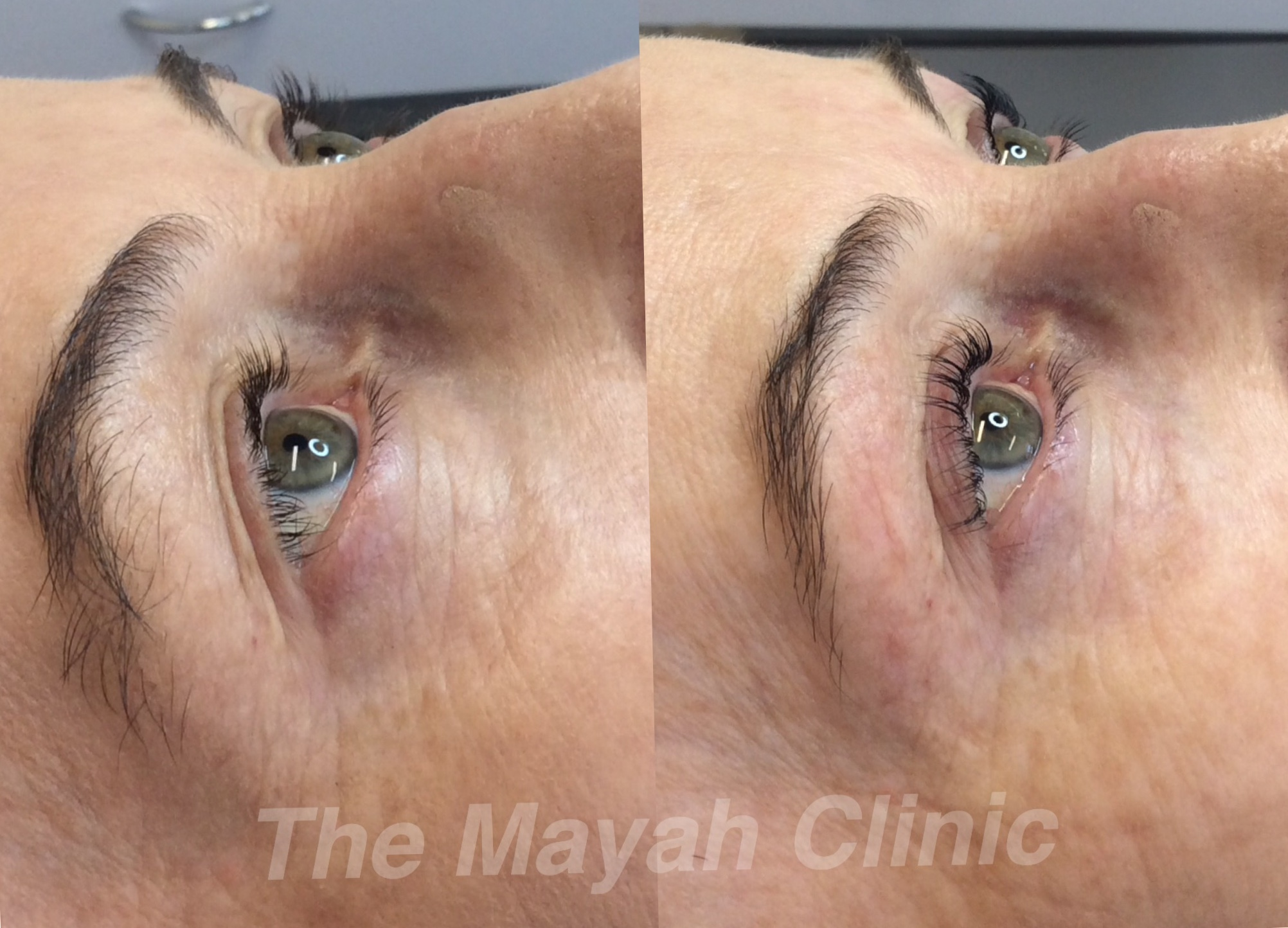 Eyelash lift treatment at The Mayah Clinic