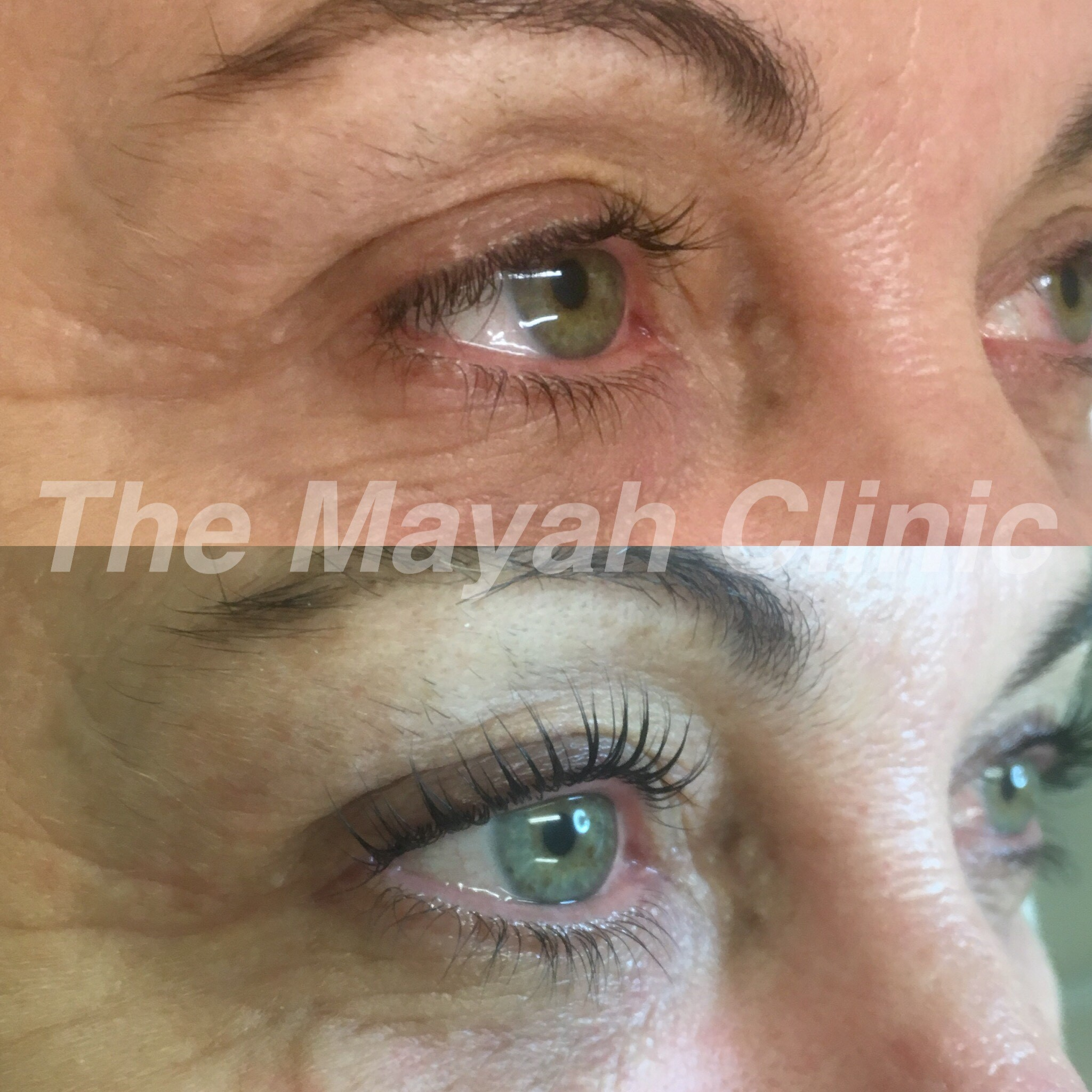 Lash lift treatment results
