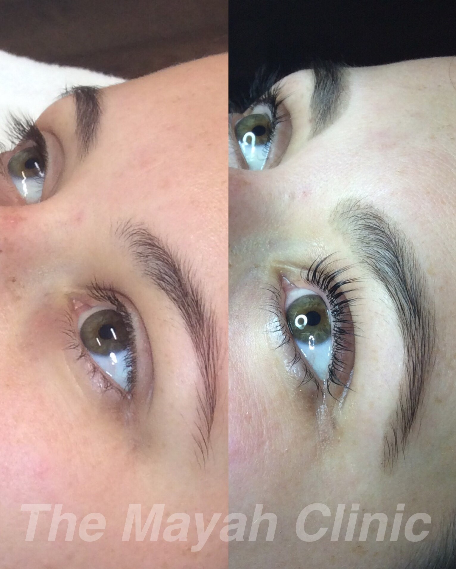 Eyelash lift in Newcastle