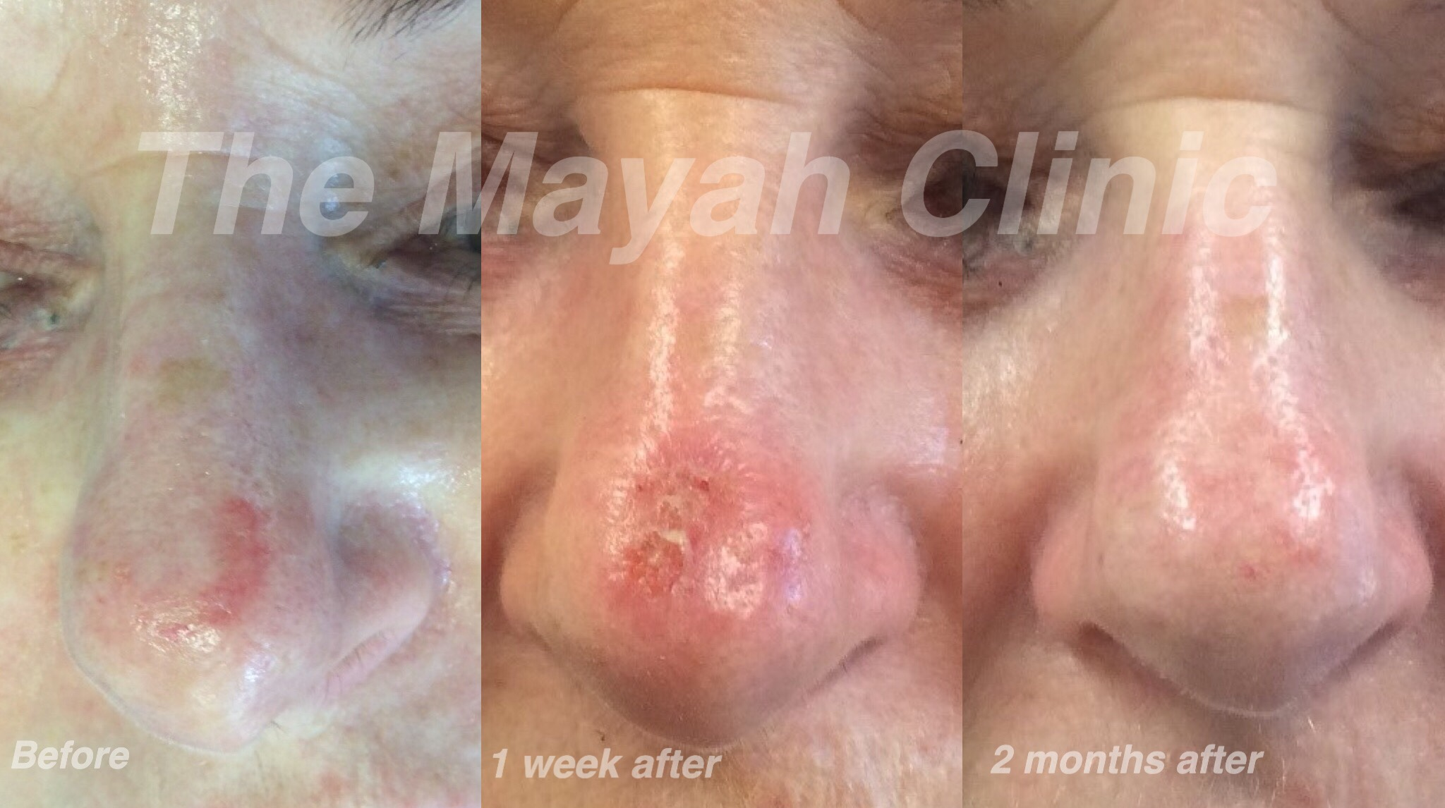 Microlaser peel treatment on nose Newcastle
