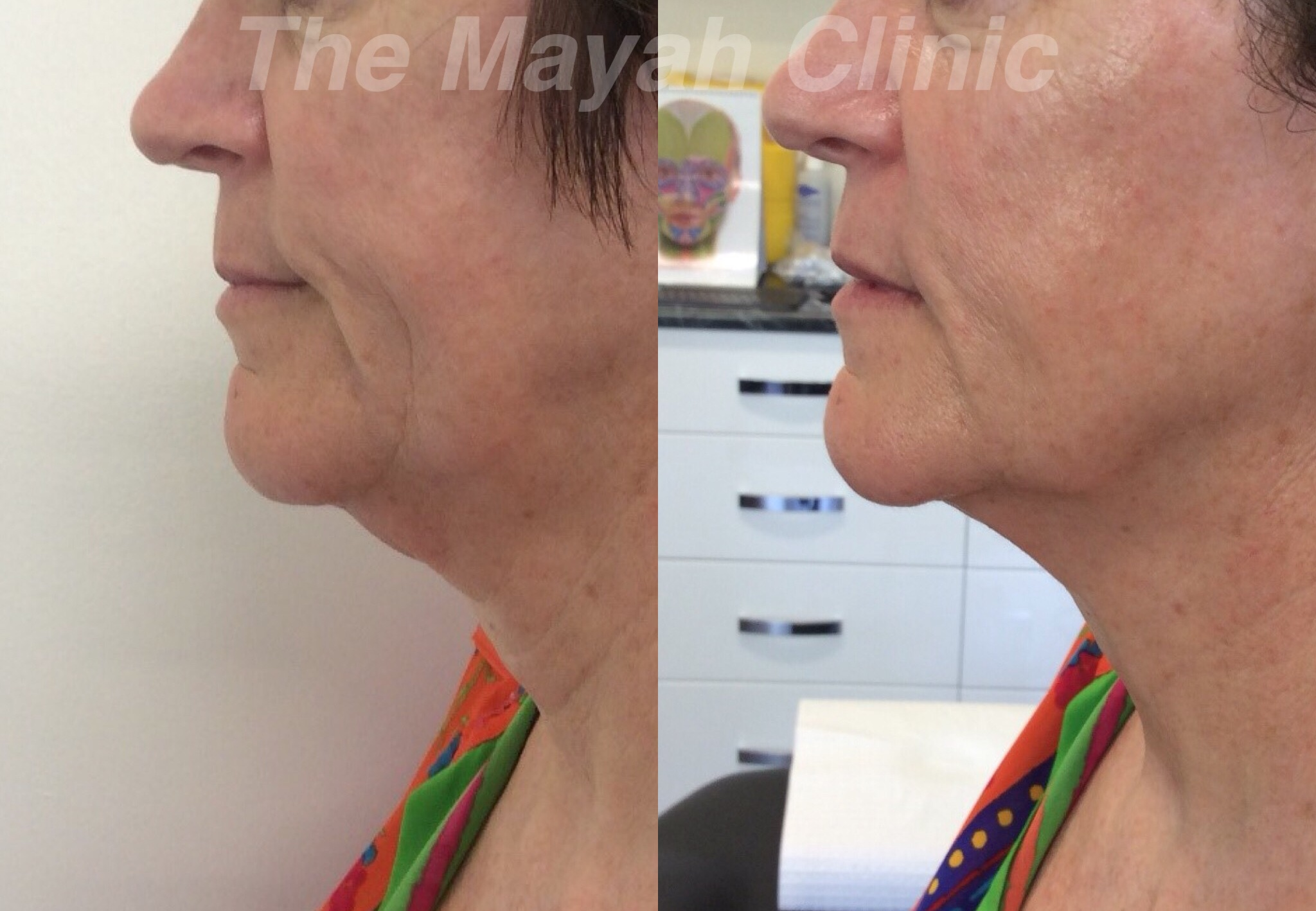Chin Treatment results in Newcastle