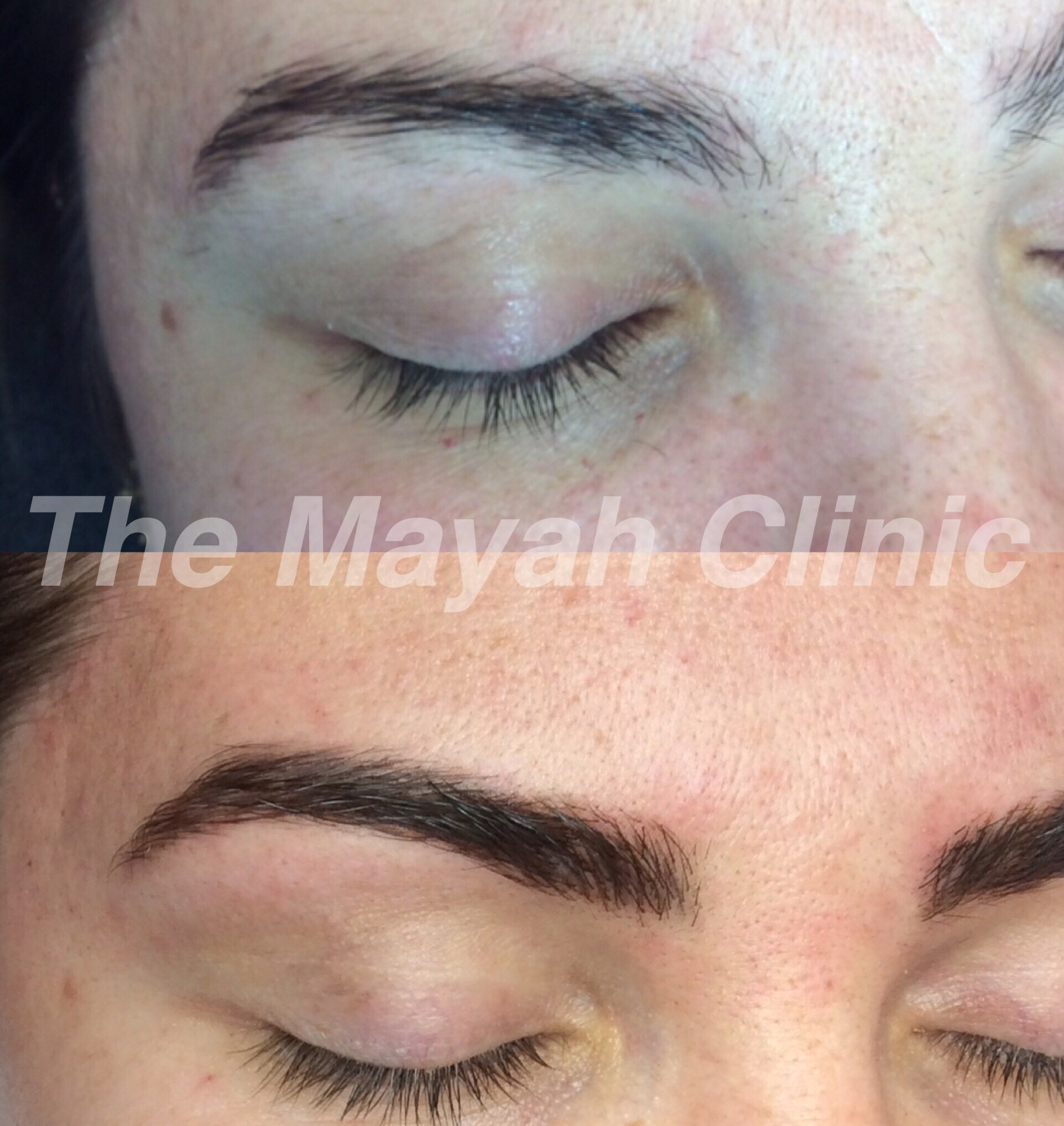 Eyebrow treatments Newcastle