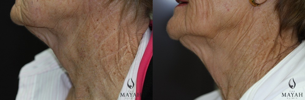 before and after bbl neck Mayah Clinic