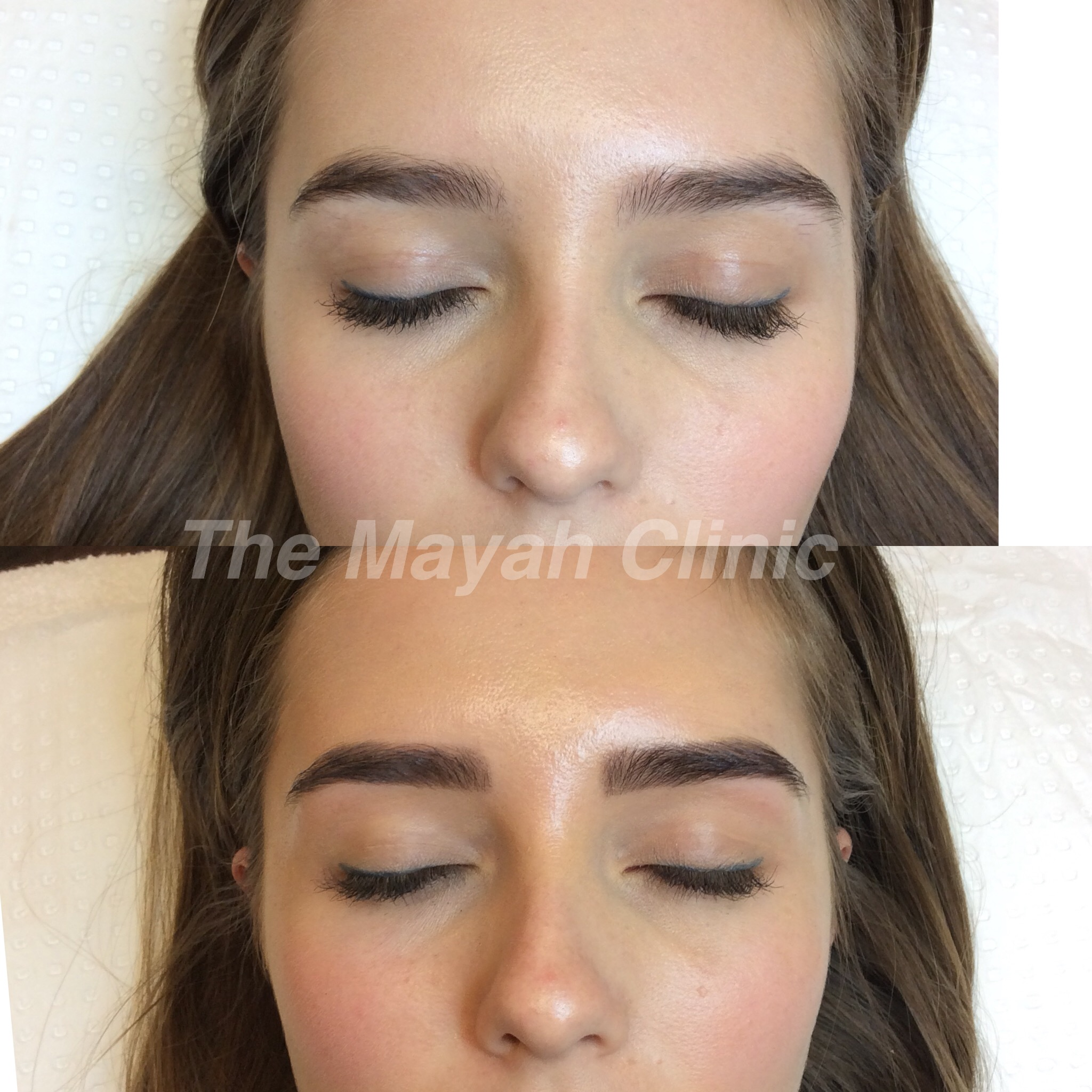 Eyebrow Tattooing Permanent Makeup In Newcastle The Mayah Clinic
