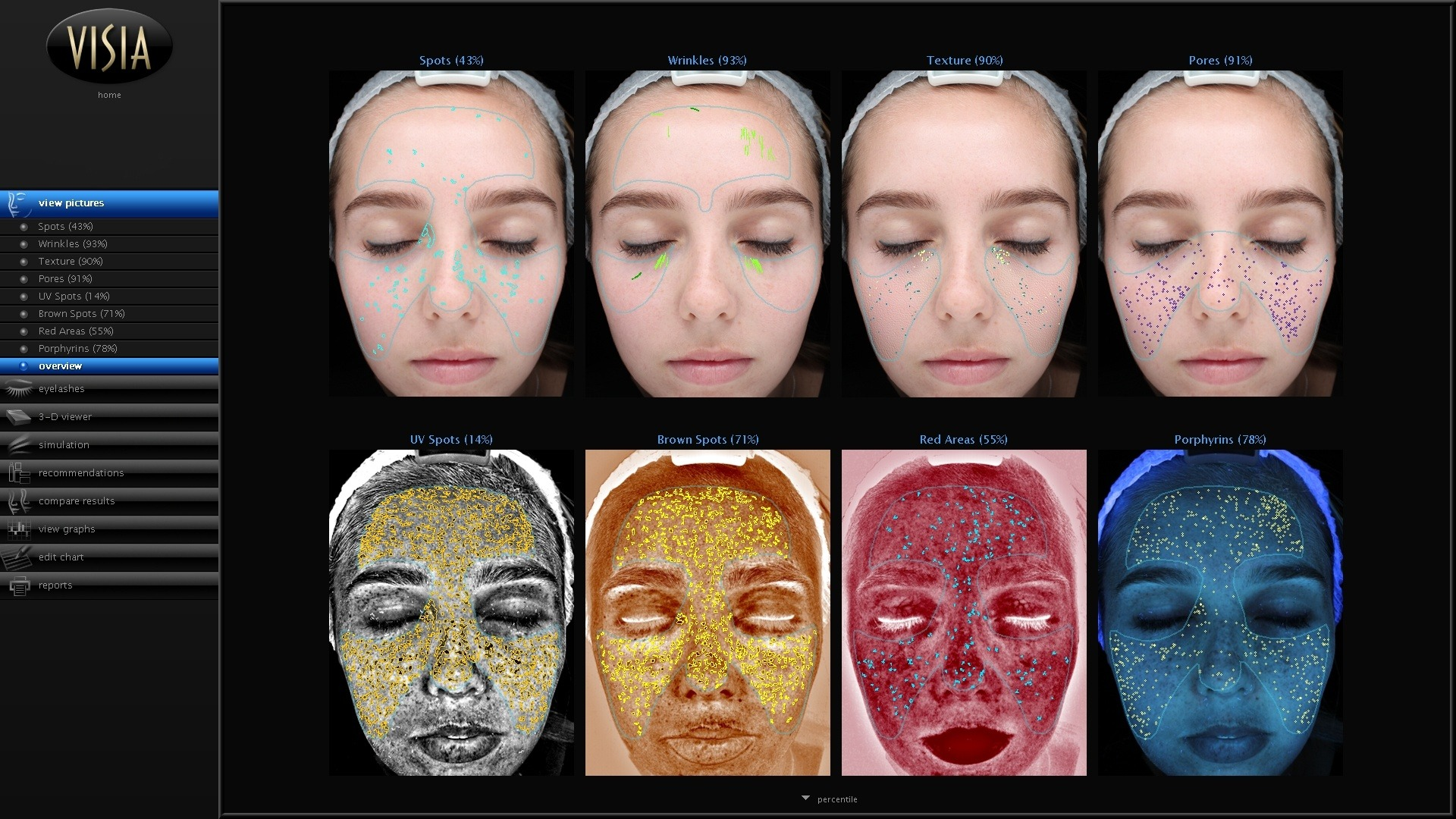 skin analysis Newcastle