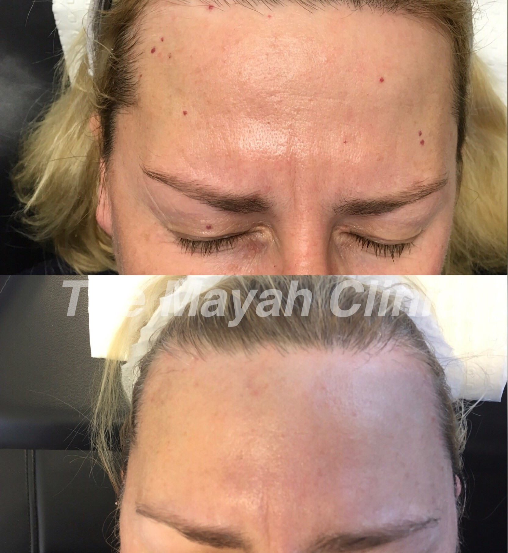 BBL forehead treatment Newcastle