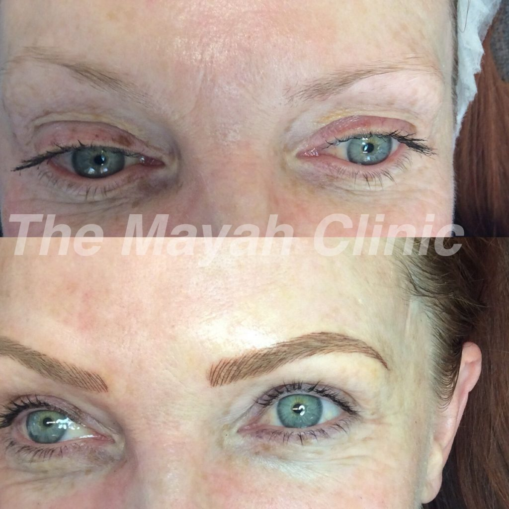 Full Brows cosmetic tattoo