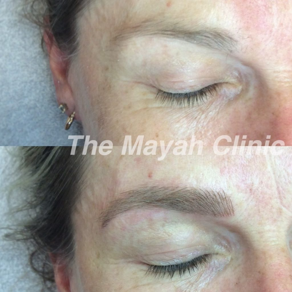 eyebrow Micropigmentation Newcastle