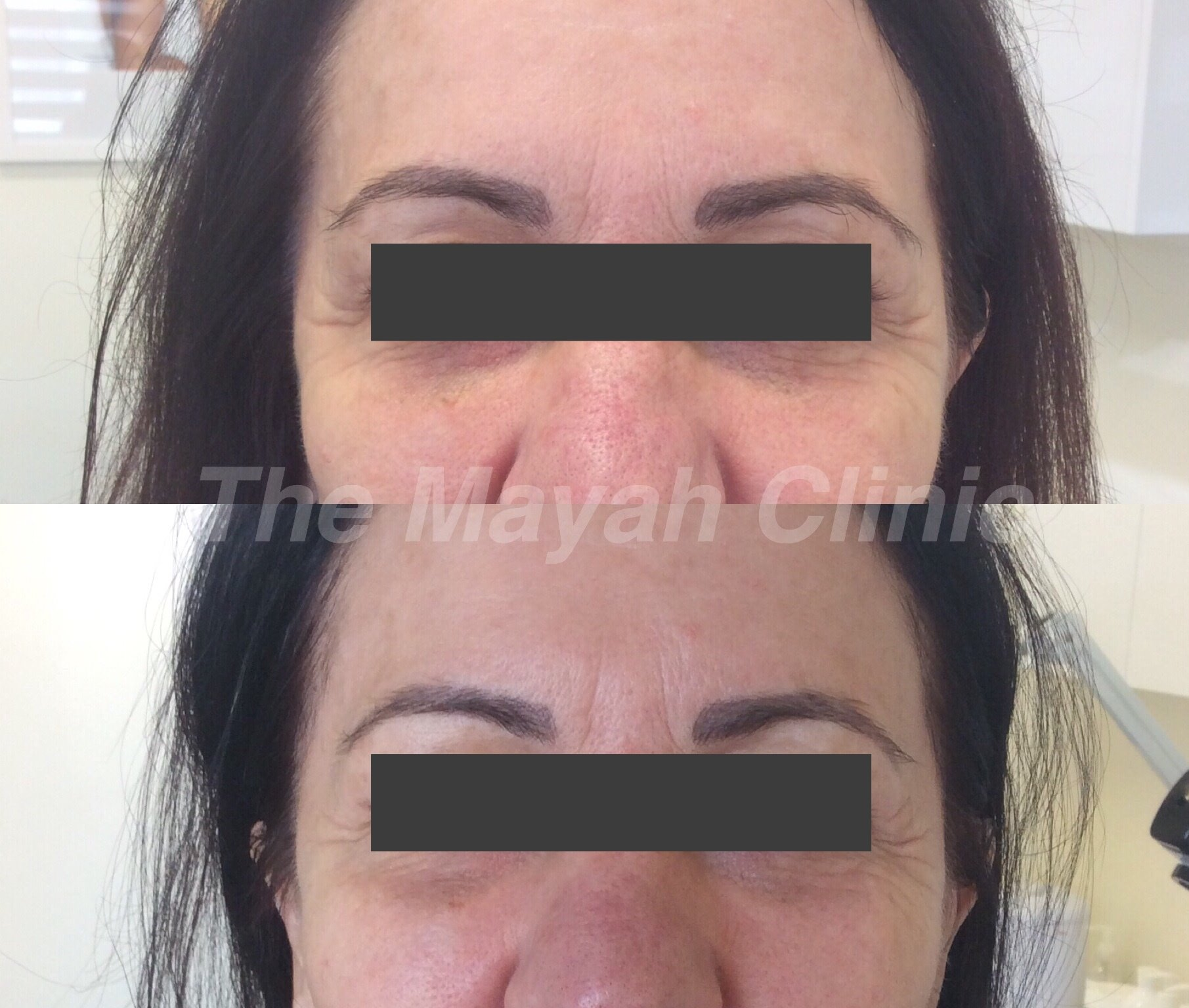 Thermismooth eye treatment results