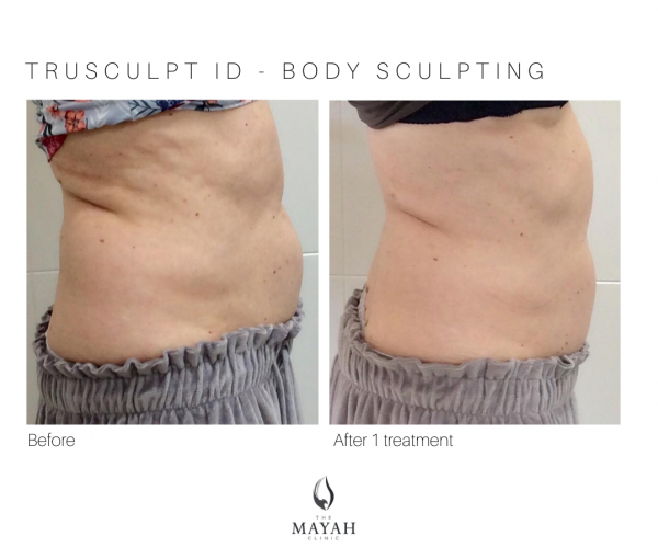 Trusculpt treatment results